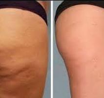 Como Reduzir a Celulite em suas Pernas